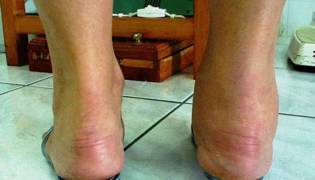 reumatická artróza
